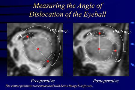 Measuring+the+Angle+of+Dislocation+of+the+Eyeball