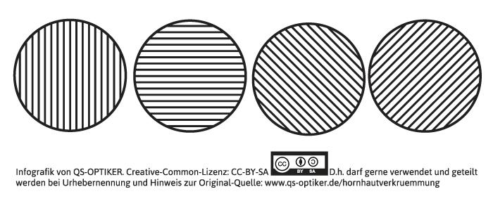 hornhautverkruemmung-strichkreistest
